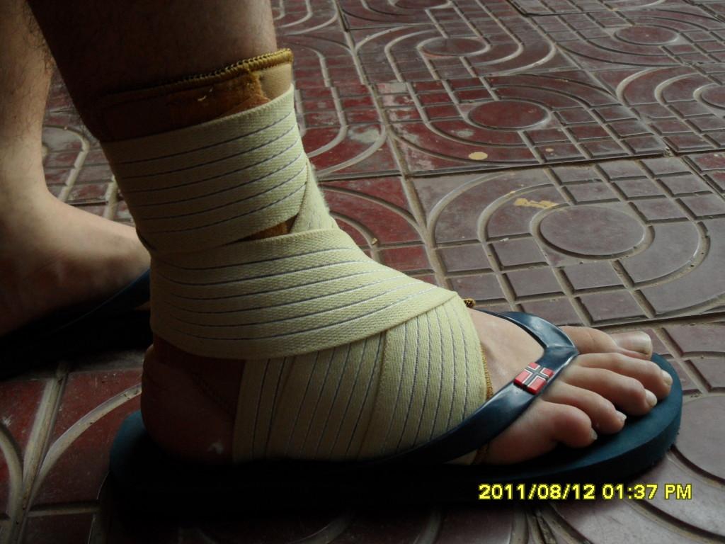 Bänderdehnung Sportverletzung