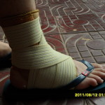 9 typische Sportverletzungen beim Joggen (und wie Du diese vermeidest)